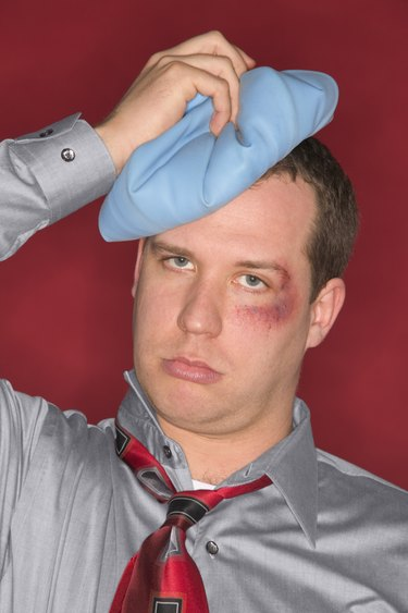 Man with black eye and ice pack